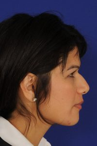 Ethnic And Asian Rhinoplasty Before | Dr. Michel Siegel
