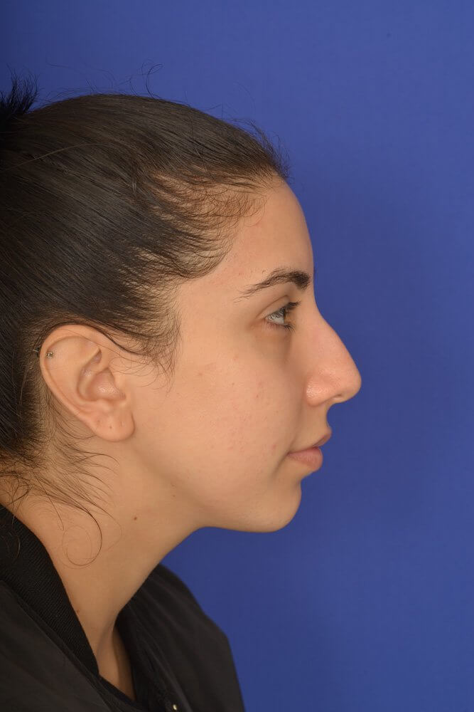 Female Rhinoplasty Before | Dr. Michel Siegel