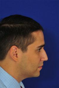 Male Rhinoplasty Before | Dr. Michel Siegel