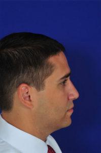 Male Rhinoplasty After | Dr. Michel Siegel