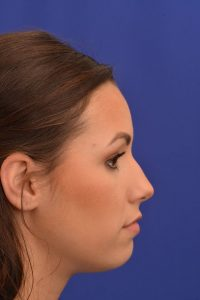 Non-Surgical Rhinoplasty Before | Dr. Michel Siegel